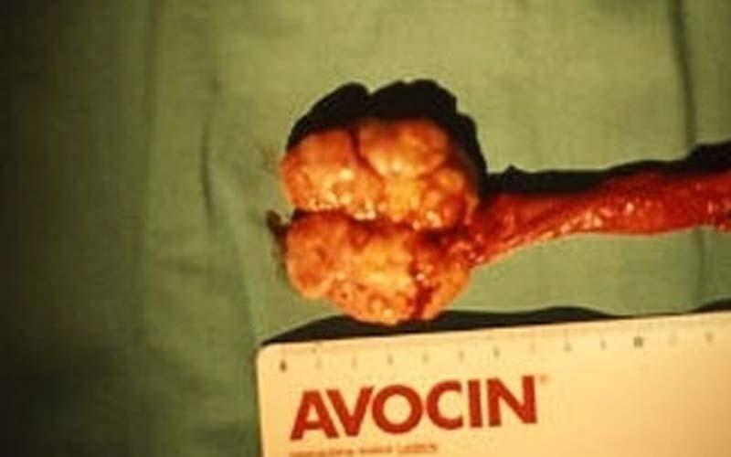 Tumori testicolari