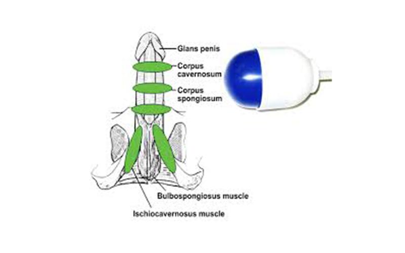 Onde d'Urto ExtraCorporee a Bassa  Intensità-(LIESW) Terapia della  Disfunzione Erettile